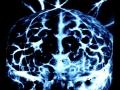 04-brain